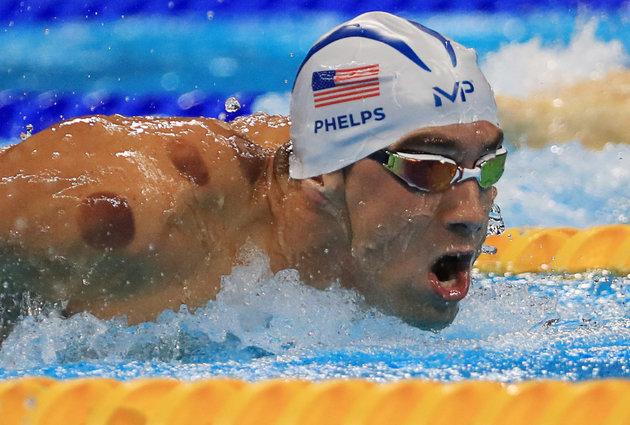 En los hombros deMichael Phelps, ganador de 23 medallas olímpicas en natación, observamos las marcas de la Hijama, cupping o ventosaterapia